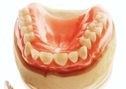 Alternativen und Möglichkeiten beim Zahnersatz